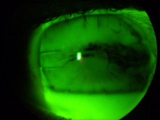 post-RK cornea with dry eye disease