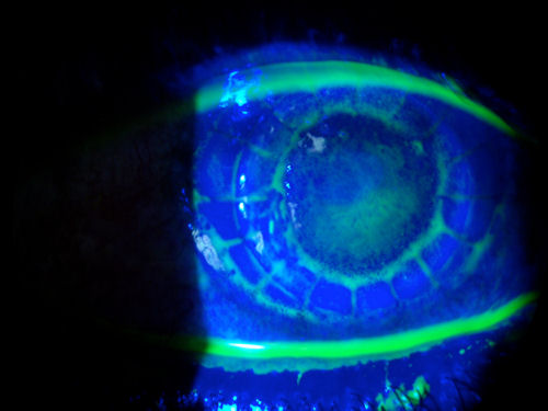corneal transplant 2 weeks after surgery