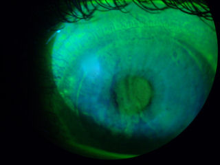 post lasik ectasia, dry eye, and epithelial ingrowth