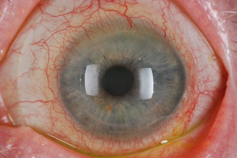 Epithelial Ingrowth Lasik Scars