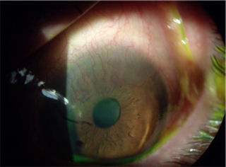 post lasik ectasia and corneal neovascularization