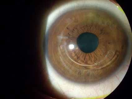 post lasik ectasia epithelial ingrowth Intacs