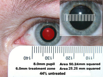 Pupil size, large pupils and LASIK: WARNING!!!