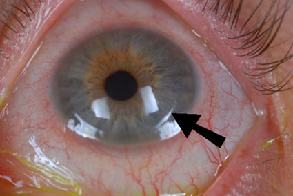 LASIK flap margin visible