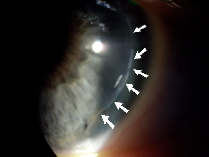 epithelial ingrowth along LASIK flap margin