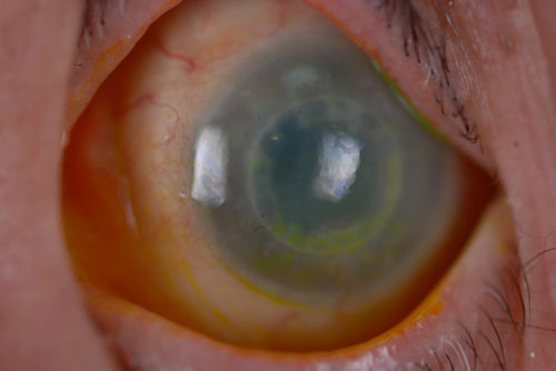 rejected corneal transplant