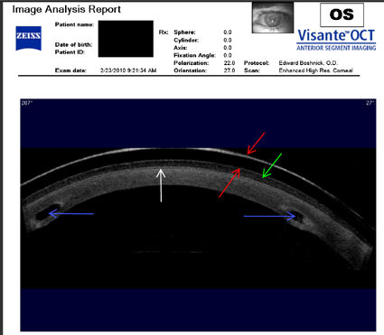 Intacs implanted in a post LASIK cornea with ectasia
