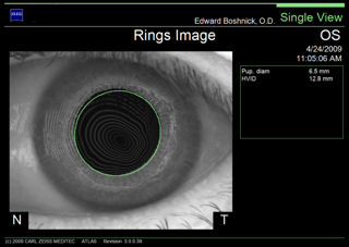 irregular astigmatism post lasik topography rings image