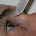 instilling artificial tears after LASIK